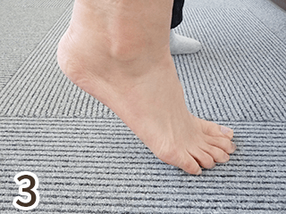 足骨折ビフォーアフター3